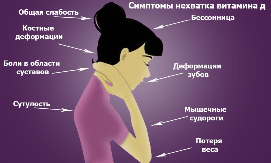 Симптомы нехватка витамина Д